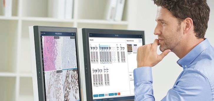 Philips e Ibex Medical Analytics se alían para acelerar la patología digital impulsada por IA